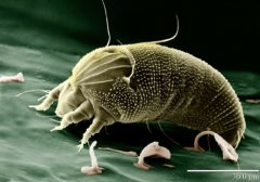Prehranske pršice in okoljske pršice lahko povzorčajo alergijske reakcije.